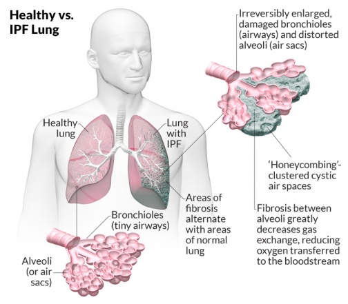 healthy-lung-vs-ipf-lung